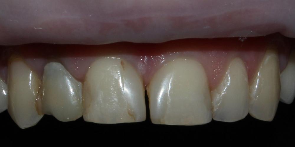 Безметалловые коронки, виниры фронтальной группы зубов