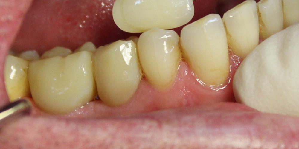 Восстановление двух отсутствующих зубов единичными коронками на диоксиде циркония