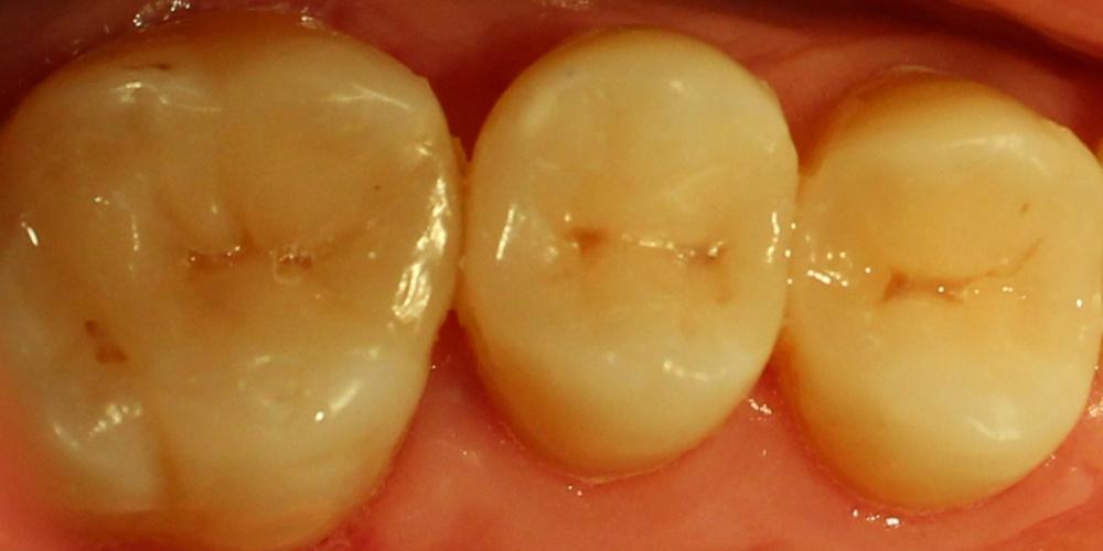 Восстановление жевательных верхних правых зубов композитными вкладками
