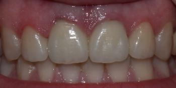 Безметалловые коронки, виниры фронтальной группы зубов фото после лечения