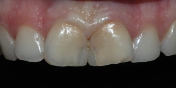 Восстановление центральных резцов безметалловыми коронками фото до лечения