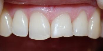 Композитная реставрация сколов зубов фото до лечения