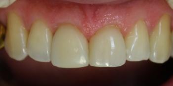 Композитная реставрация сколов зубов фото после лечения