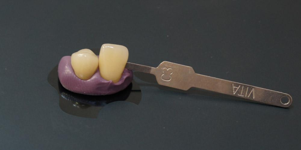 Восстановление зуба коронкой на имплантате