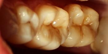 Восстановление второго нижнего жевательного зуба слева композитной вкладкой фото после лечения