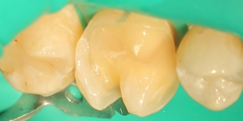 Восстановление зуба композитной вкладкой фото до лечения
