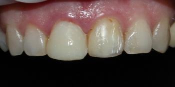 Безметалловые коронки, виниры фронтальной группы зубов фото до лечения