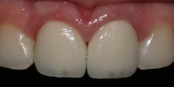 Восстановление центральных резцов безметалловыми коронками фото после лечения